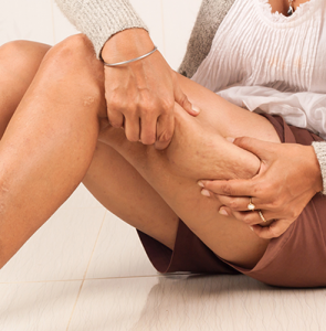nogi - cellulit